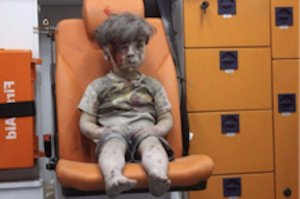 Injured Aleppo-Boy